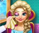 Elsa Göz Tedavisi